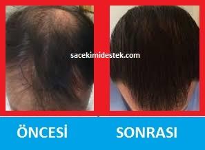saç mezoterapisi öncesi ve sonrası 4