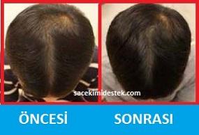 saç mezoterapisi öncesi ve sonrası 6