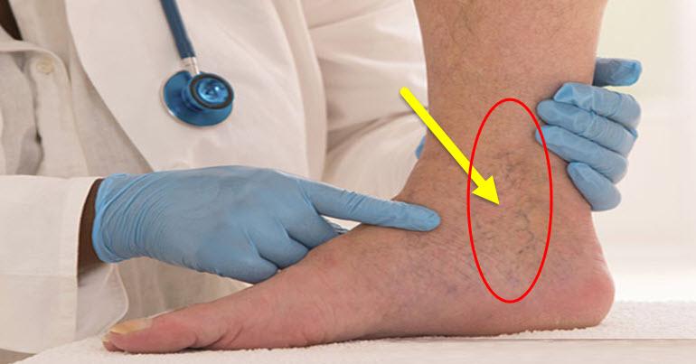 اذا شاهدت هذه العلامات في ساقك - انتبه !!!  انشر لعل الله يشفي بها مريض