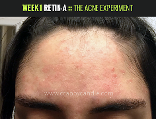 Week 1 on Retin-A :: The Acne Experiment