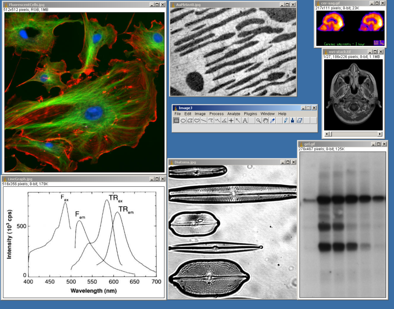 Central Clinical School News Blog: Image Analysis Workshops