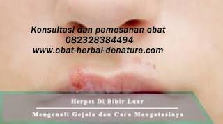 ResepJamuJawaAsliIndonesia: Penyakit Herpes Dan Cara Pengobatannya