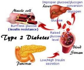 cara manfaat daun kelor, resep daun kelor untuk diabetes, ekstrak daun kelor untuk diabetes, cara memasak daun kelor untuk obat diabetes, khasiat daun kelor untuk mata minus, ternyata kelor penakluk diabetes, khasiat daun kelor untuk kolesterol, cara menyembuhkan diabetes tanpa obat
