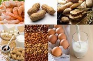 5 Makanan Ini Memperburuk Jerawat