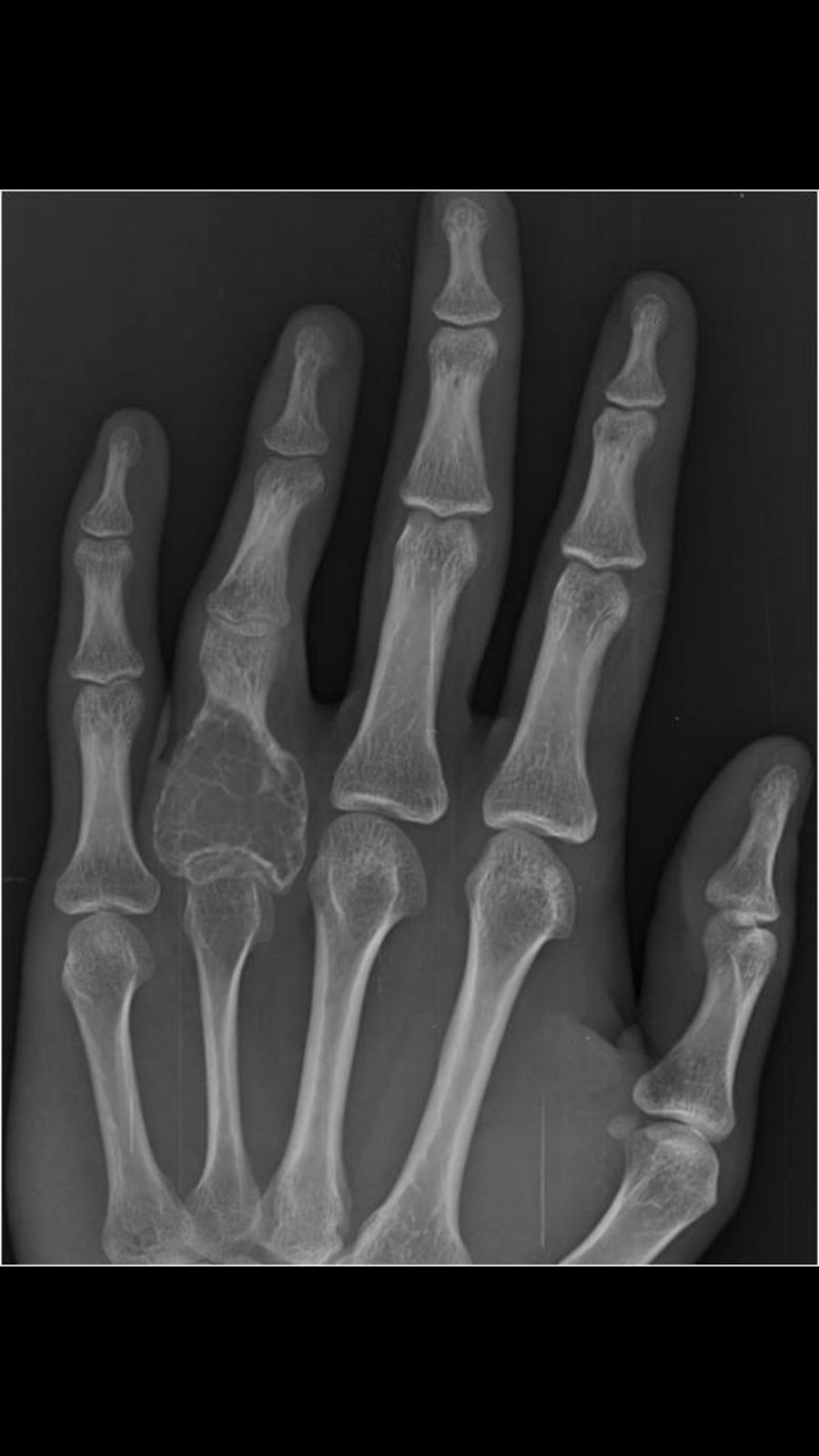 Anatomía Radiológica UVM aplicada: Caso #11 EESS