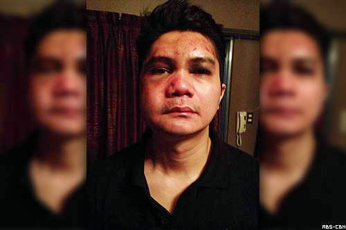 Vhong Navarro is victim of extortion
