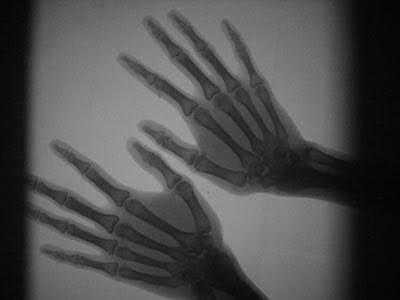 Hasil radiografi digital di lab fisika universitas negeri semarang