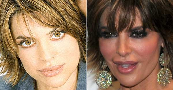 Lisa Rinna Plastic Surgery Before And After Botox And