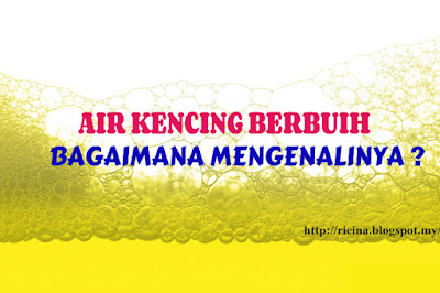 Air Kencing berbuih