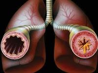 Cara mengendalikan asma bronkial