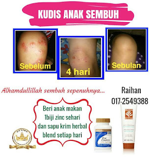 Testi Krim Herbal Blend Kudis Sembuh