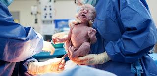 Dampak Negatif Operasi Caesar Pada Ibu Dan Bayi