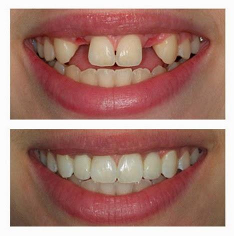 Bellevue Family Dentistry - Oral Health Blog: 2014