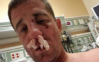 Veterans Brutally Attacked By Black Lives Matter, Says Army Staff Sergeant