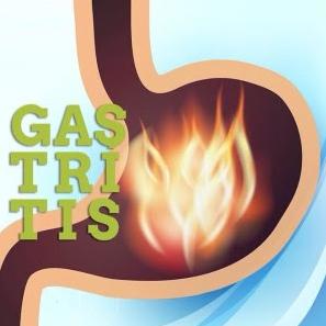 Obat Gastritis
