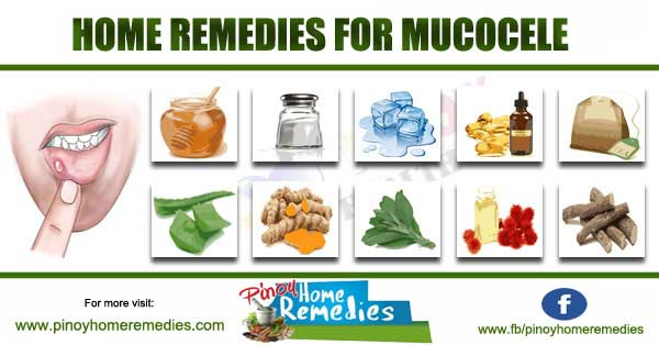 Home Remedies For Mucocele (Mucous Cyst)