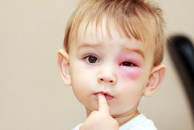 Cara Mengatasi Mata Bengkak Pada Anak