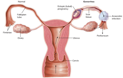 infeksi Neisseria gonorrhoeae pada organ reproduksi wanita