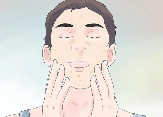 Step 1 of Eliminate Acne Using Natural Products