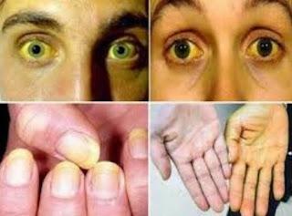 penyakit kuning