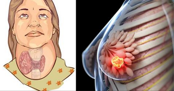 Drink Destroys Your Thyroid Gland And Causes Breast Cancer
