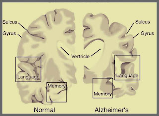pareri pozitive ban2401 medicament nou eficient tratament Alzheimer