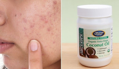 Does Coconut Oil Help Acne