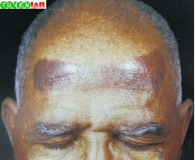 Fig. 2.12 Hatband dermatitis