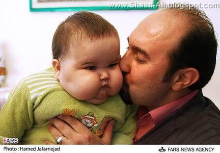 Original Facts: 20 kg baby born in Tehran, Iran ...