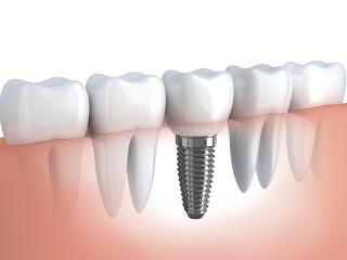 Trồng răng implant có đau không ?