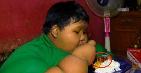 Ternyata Penyebab Obesitas Arya Karena Sering Makan dan Minum Ini