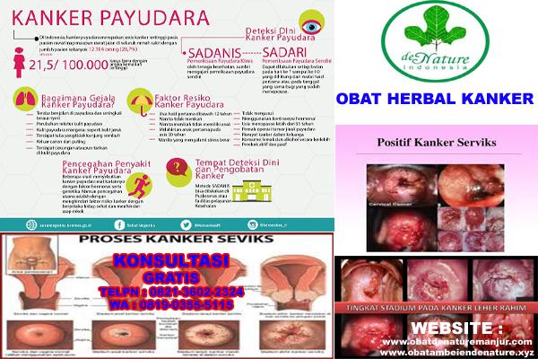 obat herbal kanker serviks stadium 4