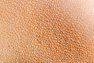 Why Goosebumps Appear