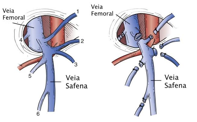 A safenectomia começa com a separação das veias safena e femoral