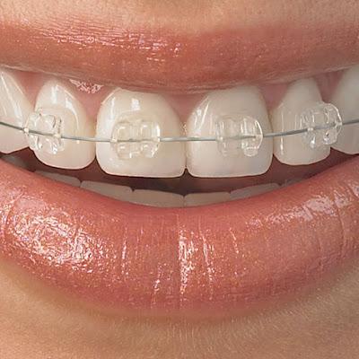 Có nên niềng răng không nhổ răng không?