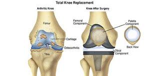 knee replacement in Delhi