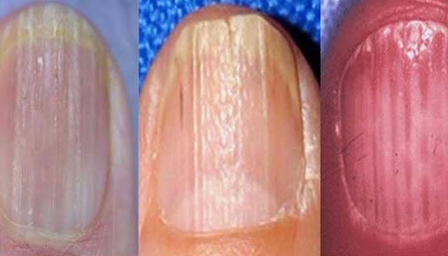 starea unghiilor divulga informatii pretioase despre sanatate