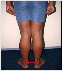 nilai anthropometri kaki x bimbelpolri - Apa Saja yang Menggugurkan di tes kesehatan penerimaan polri 2019