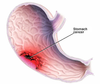 http://surgicalgastro.com/stomach-cancer/