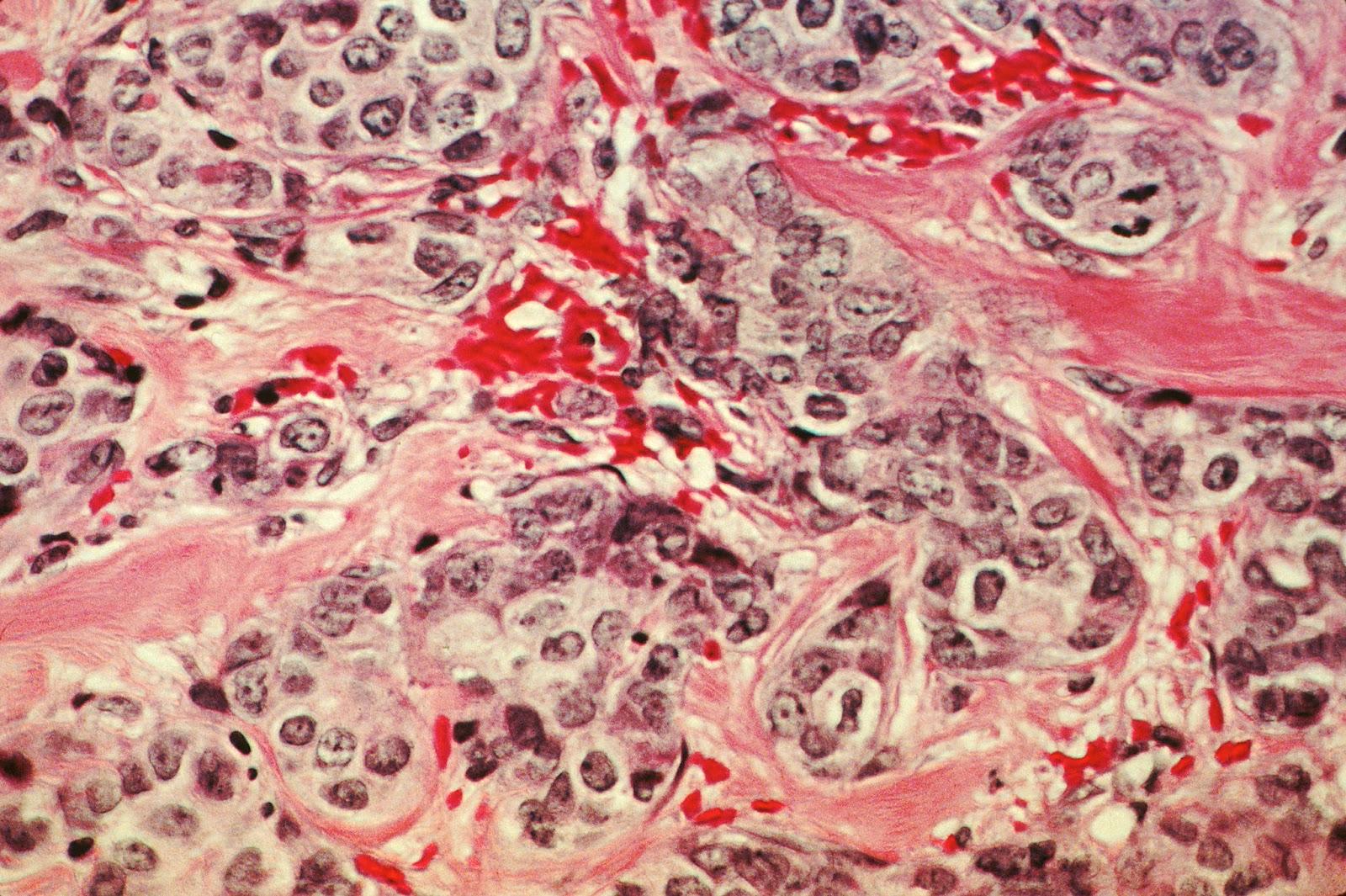 Fakta Asas Kanser Yang Patut Kita Tahu Dan Boleh ke Sekat Pertumbuhan Sel Kanser Sebelum ianya PARAH?