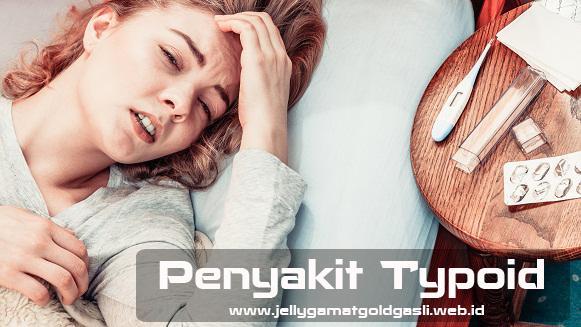 Obat Penyakit Typoid Di Apotik