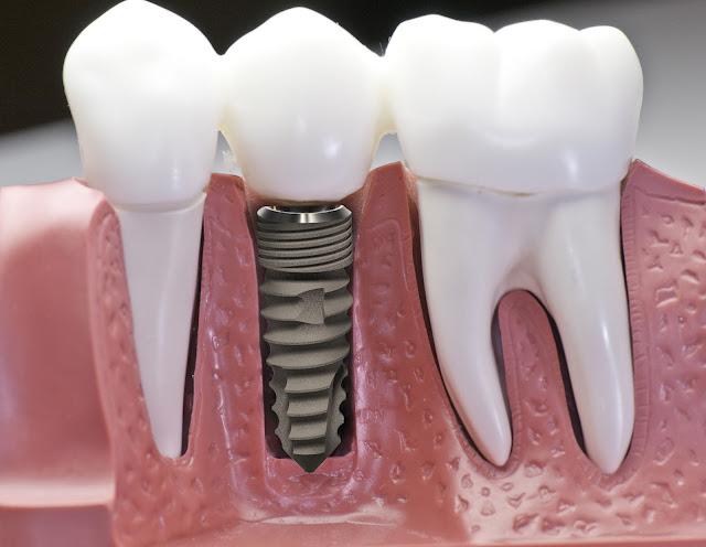 cay-ghep-rang-cay-ghep-implant-nha-khoa-uy-tin-tphcm-quan-5-thuan-kieu