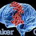 Simak Hal-Hal Yang Harus Anda Ketahui Tentang Kanker Otak