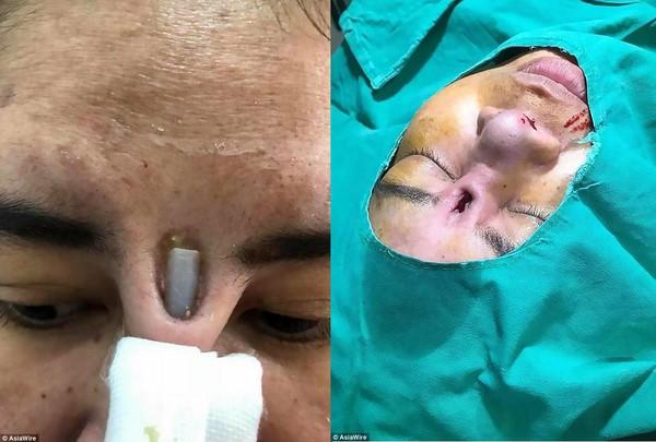 Lòi sụn mũi giữa hai mắt vì tham phẫu thuật miễn phí