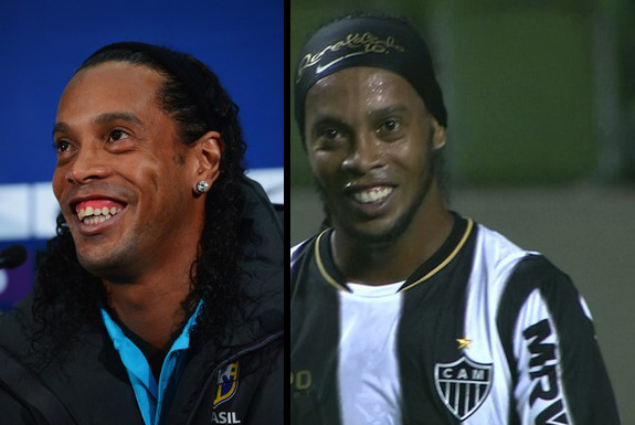 A look at Ronaldinho before and after undergoing surgery