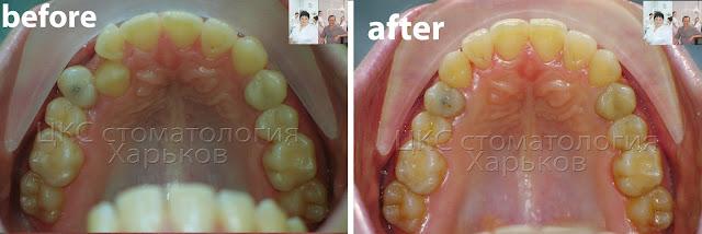 До и после лечения брекетами