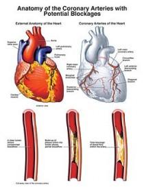 Ayurvedic Treatment for Heart Disease