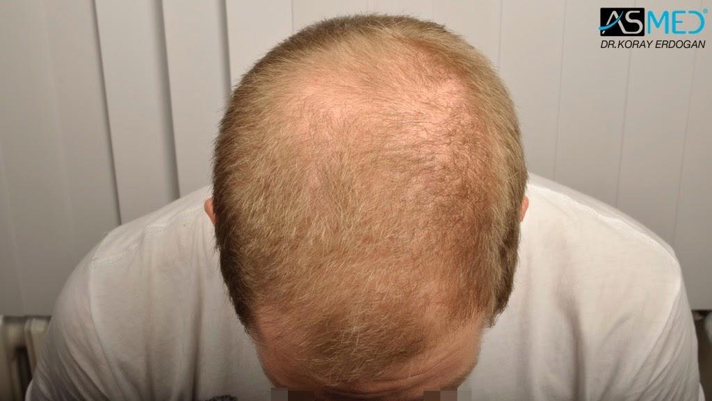 Hair Solutions Dr Koray Erdogan Asmed 4016 Grafts