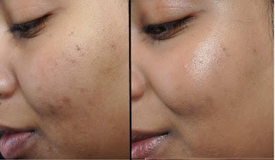 Comment faire disparaître les cicatrices d'acné naturellement ?