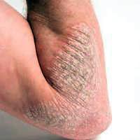 Image Penyakit Gatal Kronis